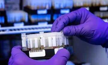 Κάτω από 700 τα νέα κρούσματα του κορονοϊού - 26 θάνατοι και 299 ασθενείς στις ΜΕΘ
